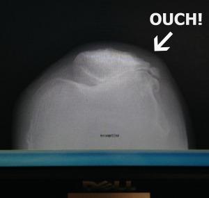 susie's knee
